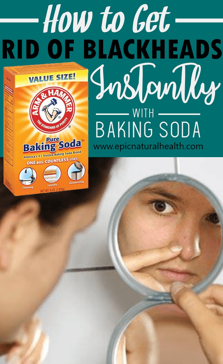 how to get rid of pimples instantly naturally