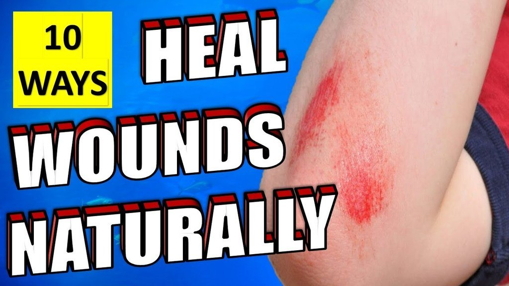 10 ways to heal wounds naturally