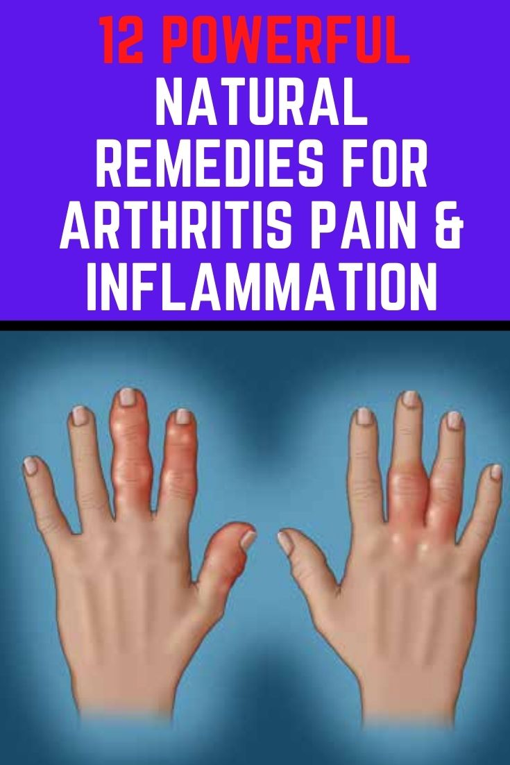 12 Powerful Natural Remedies for Arthritis Pain and Inflammation