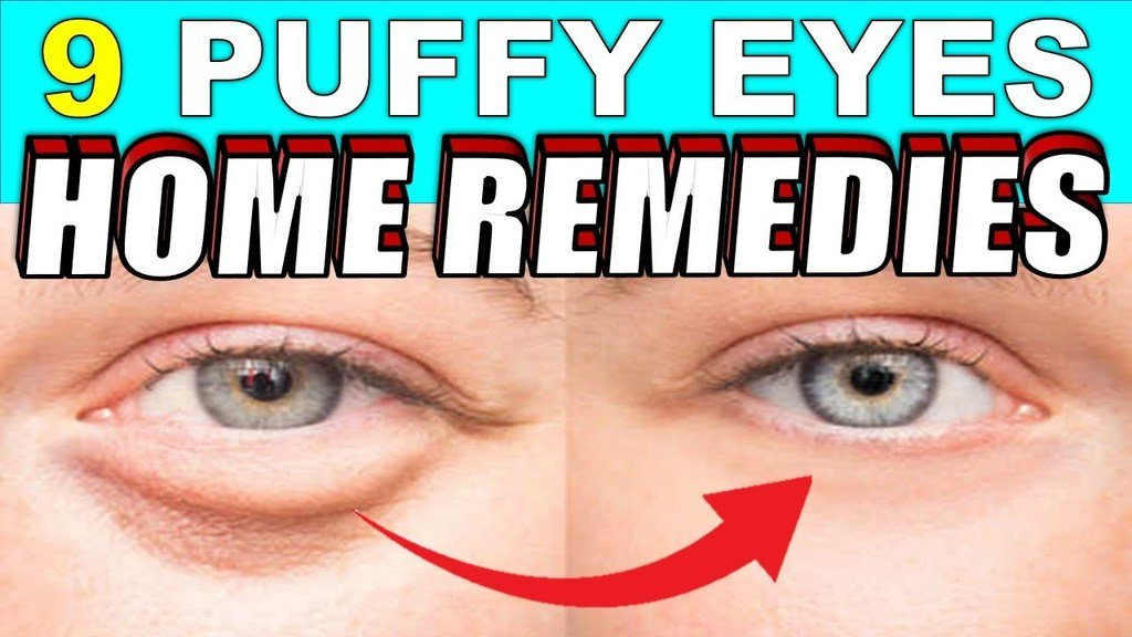 9 puffy eyes home remedies