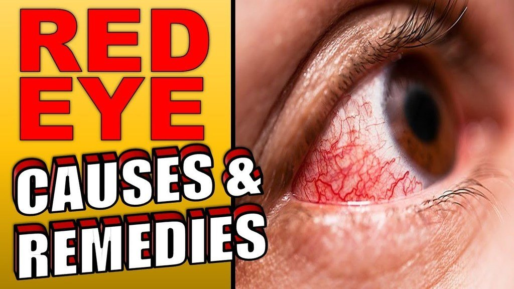 Red Eye causes and remedies