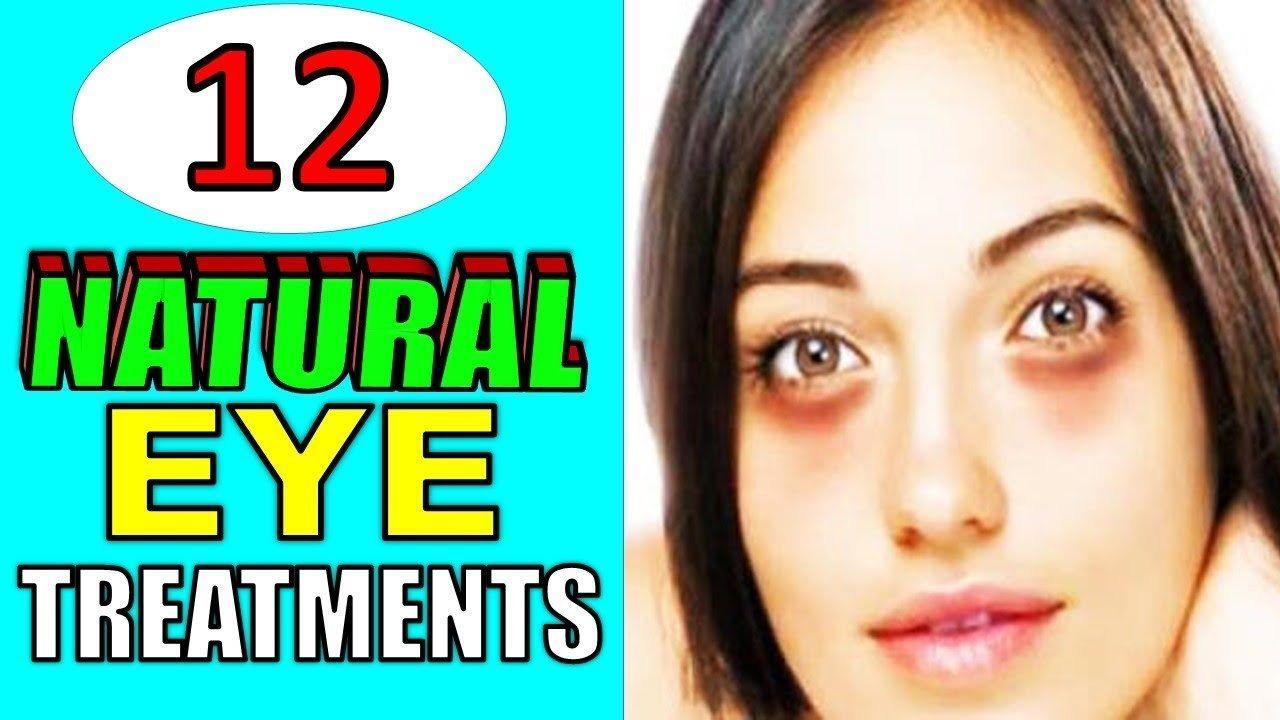 Natural eye treatments