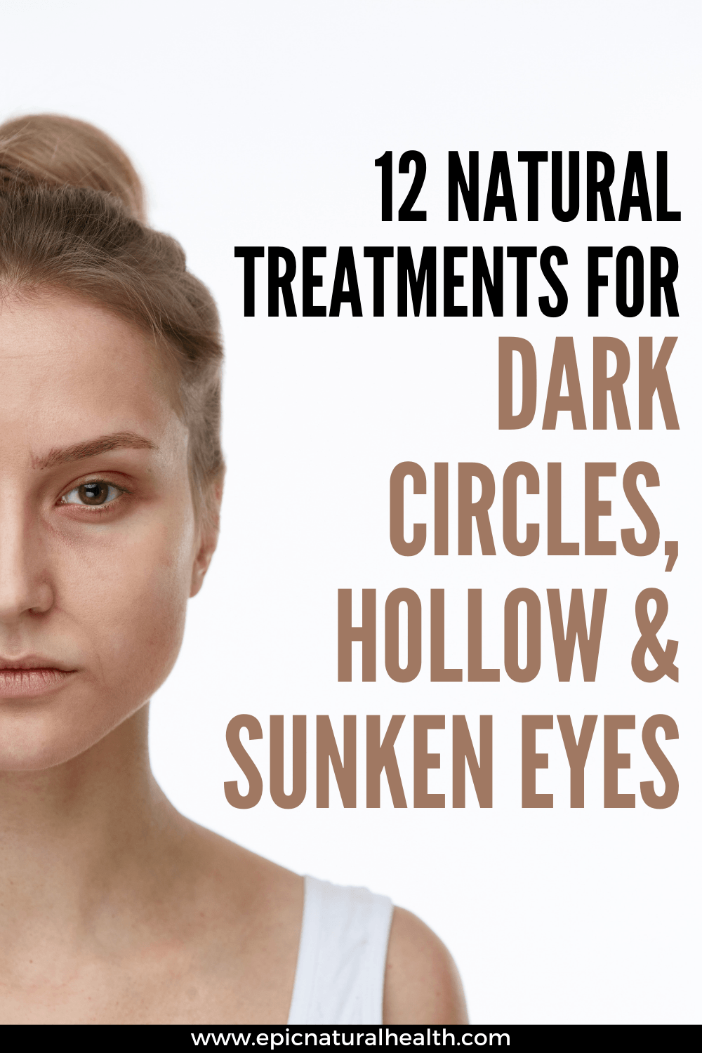 natural treatments for dark cirlces, hollow and sunken eyes
