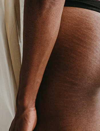 can help minimize stretch marks