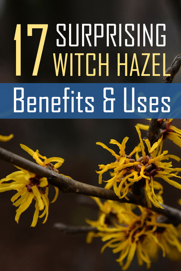 surprising witch hazel benefits and uses